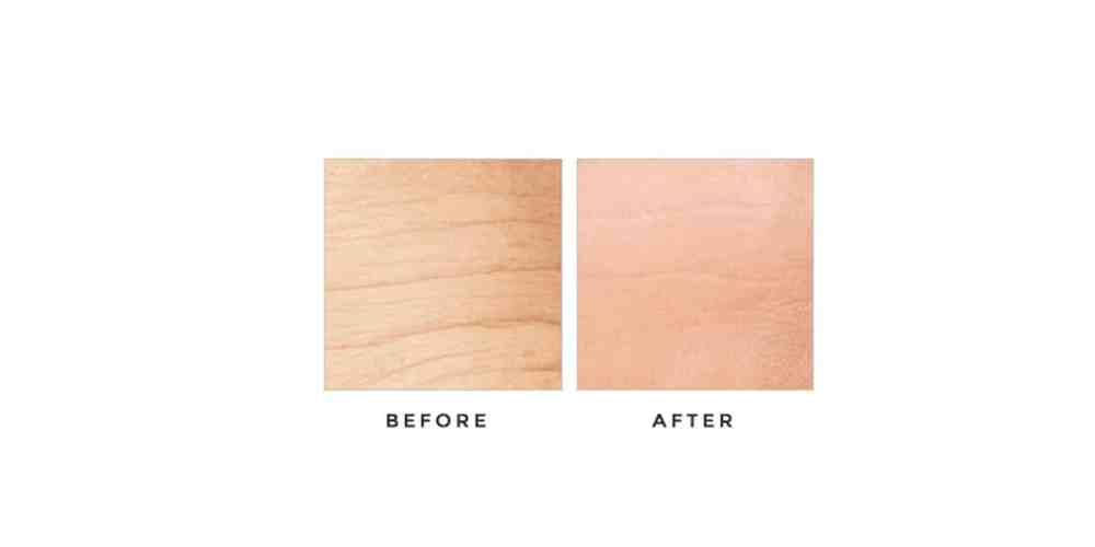 Derma-Progenix-before-after-results